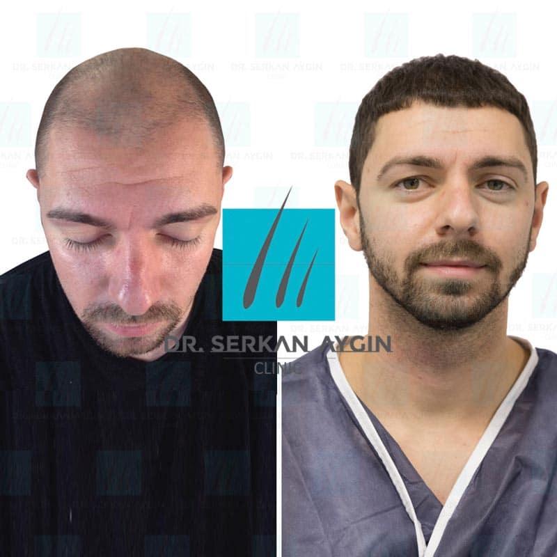 prima e dopo trapianto capelli risultato