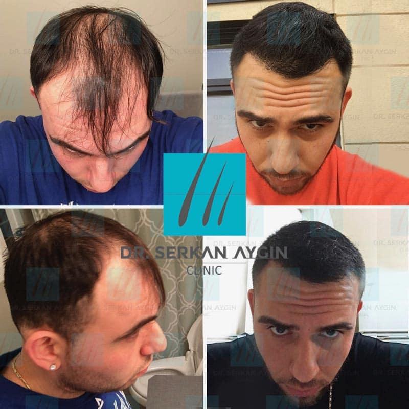 foto prima e dopo trapianto capelli