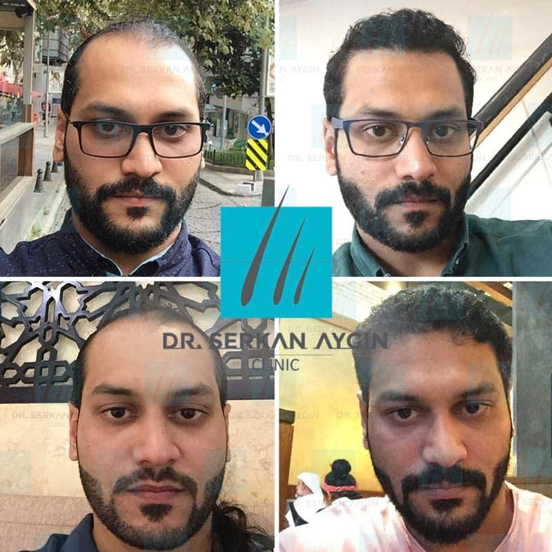 risultato prima e dopo trapianto capelli