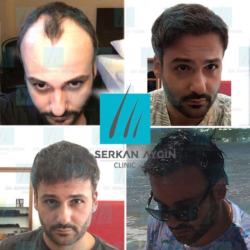 risultati prima e dopo trapianto capelli