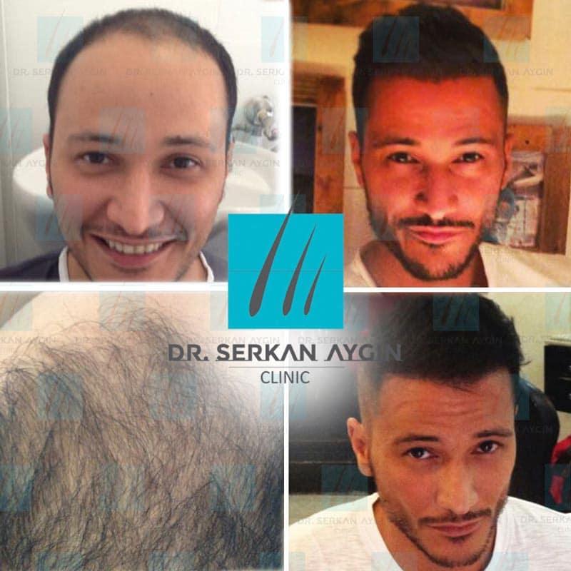 prima e dopo trapianto capelli dott aygin