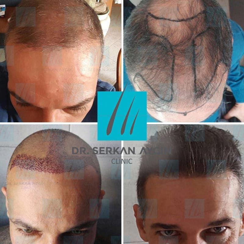 prima e dopo trapianto capelli serkan