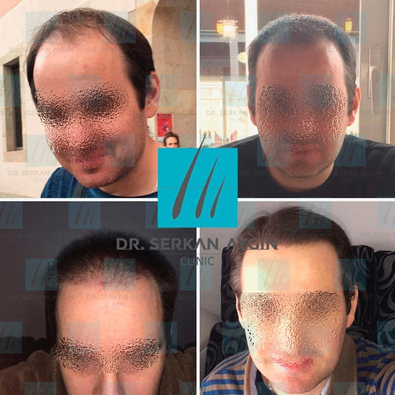 prima e dopo trapianto capelli