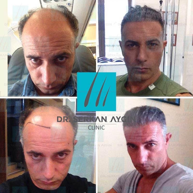 Prima e dopo trapianto capelli turchia